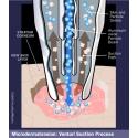 Oxy i Hydrabrazja AquaPeel™